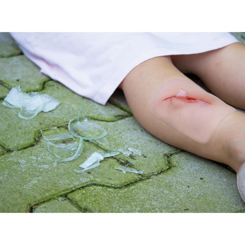 Erler Zimmer Πρόπλασμα πληγής από σπασμένο γυαλί